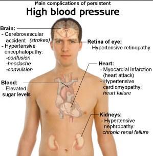 Symptoms of arteria coronaria unwellness